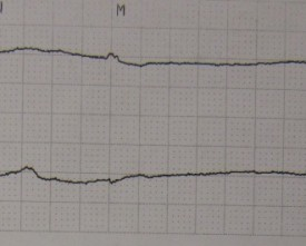 Asystole11-800x265